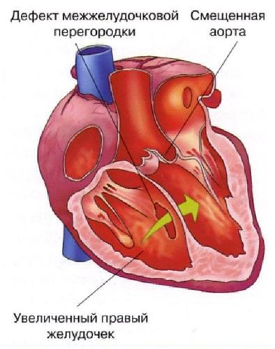 Дмжп центральный мышечный у новорожденного