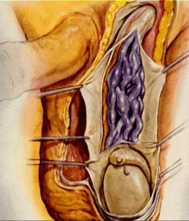Как вылечить варикоцеле без операции