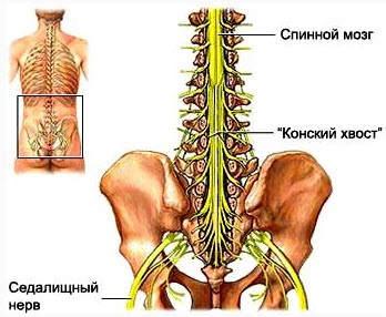 Злокачественное новообразование конского хвоста спинного мозга