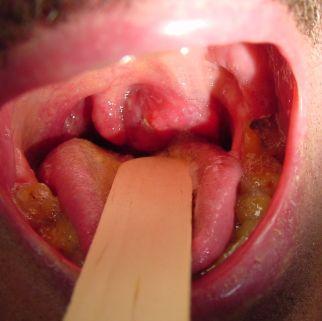 запах изо рта после отравления