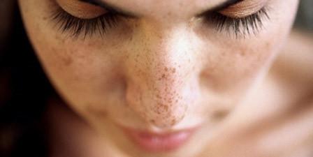 Профессиональное средство для отбеливания кожи