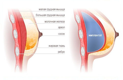 Шрамы после пластики груди на ареоле
