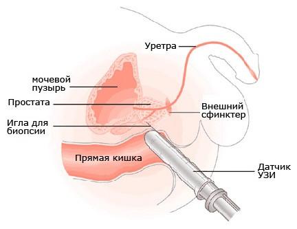Лечение простатит в урумчи